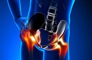Chirurgia dell'anca