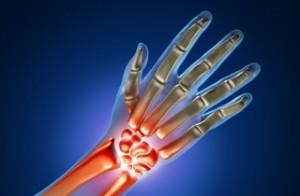 Chirurgia della mano